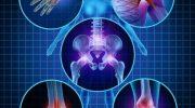 Artrit Eklem Ağrısı: Hangi Takviyeler Çalışır?