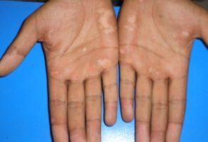 Ala Hastalığı Belirtileri ve Tedavisi
