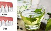 Bu 4 Doğal Çözüm, Çürük Dişleri Onarır