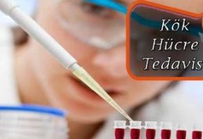 Kök Hücre Tedavisinin Uygulandığı Bölgeler Nelerdir