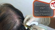 Kadınlarda PRP Saç Tedavisi Nasıl Yapılır
