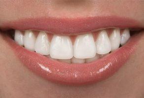 Dişlerin Genç Görünümü Korunabilir Mi?
