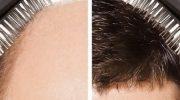 Clinista İle Saç Ekiminde Kesin Çözüm