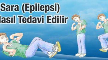 Sara (Epilepsi) Nasıl Tedavi Edilir