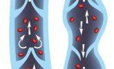 Varisli Damarlar İçin En İyi 10 Tedavi