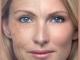 Yüzünüzde kırışıklığa neden olan önemli faktörler