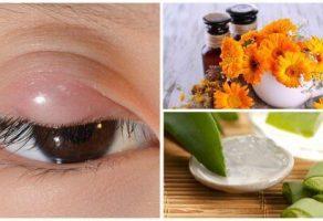 Arpacığı Bu 7 Doğal Tedavi İle Rahatlatın