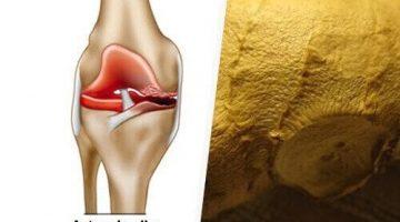 Osteoartritin Semptomları Nasıl Ortadan Kaldırılabilir?