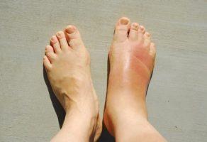 Bacakta Damar Tıkanıklığı Belirtileri ve Tedavisi