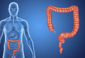 Bağırsak (Kolorektal) Kanseri Nedenleri, Belirtileri, Ameliyatı ve Tedavisi