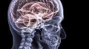 Beyin: Bu Alışkanlıklar Her Gün Beyninizi Zarar Görür