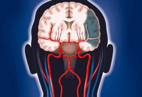 Beyin Hücreleri Neden Ölür ?
