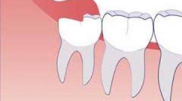 Diş Ağrısına Bitkisel Çözüm