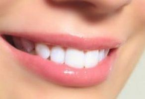 Diş Beyazlatma (Bleaching) ve Detayları