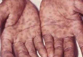 Frengi Hastalığı ve Tedavisi