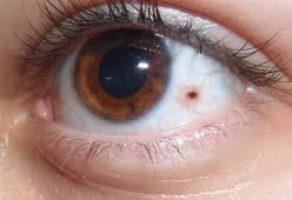 Retina Yırtılması ve Ameliyatı