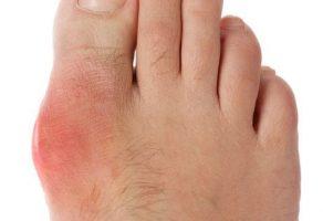 Ürik Asit Yüksekliği ve Gut Hastalığı