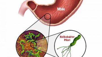 Helicobakter pylori mikrobu
