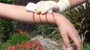 Hemofili Nedir Tedavisi Nasıl Yapılır?