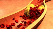 Hiperlipidemi Belirtileri ve Tedavisi