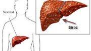 Siroz Hastalığı, Belirtileri, Tedavisi