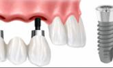 Diş İmplantı Hakkında Detaylı Bilgiler