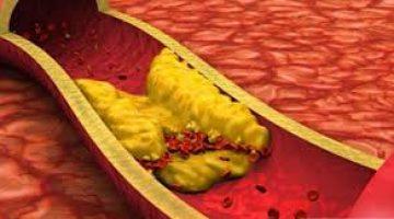 Arterlerinizi Temiz Tutmak için En İyi 10 Yiyecek