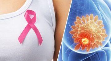 Meme Kanserini Önlemenin 9 Yolu – Meme Kanseri Önleme İpuçları