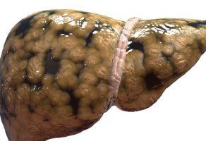 Karaciğer Yağlanması Nedir ? & Karaciğer Yağlanmasının Tedavisi