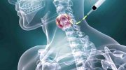 Lenfoma (Hodgkin, Non Hodgkin) Nedir ? & Lenfoma Tedavisi Nasıl Yapılır ?