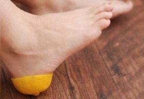 Limonu topuğunuza sürermenin bakın neye faydası var?