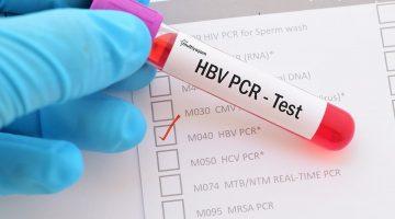 PCR Nedir ? Doktorlar Neden PCR Testi İster ?