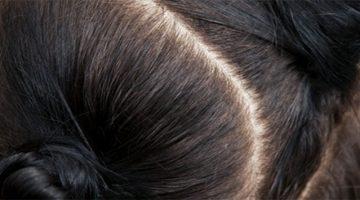 Saç Biti Nasıl Geçer?