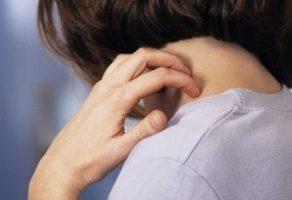 Vücutta Kaşıntı Nedenleri ve Tedavisi